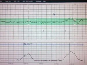 Heartbeat and Contraction Monitor